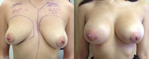 Breast Asymmetry Before and After