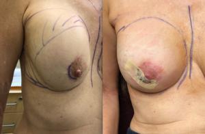 Breast Aug