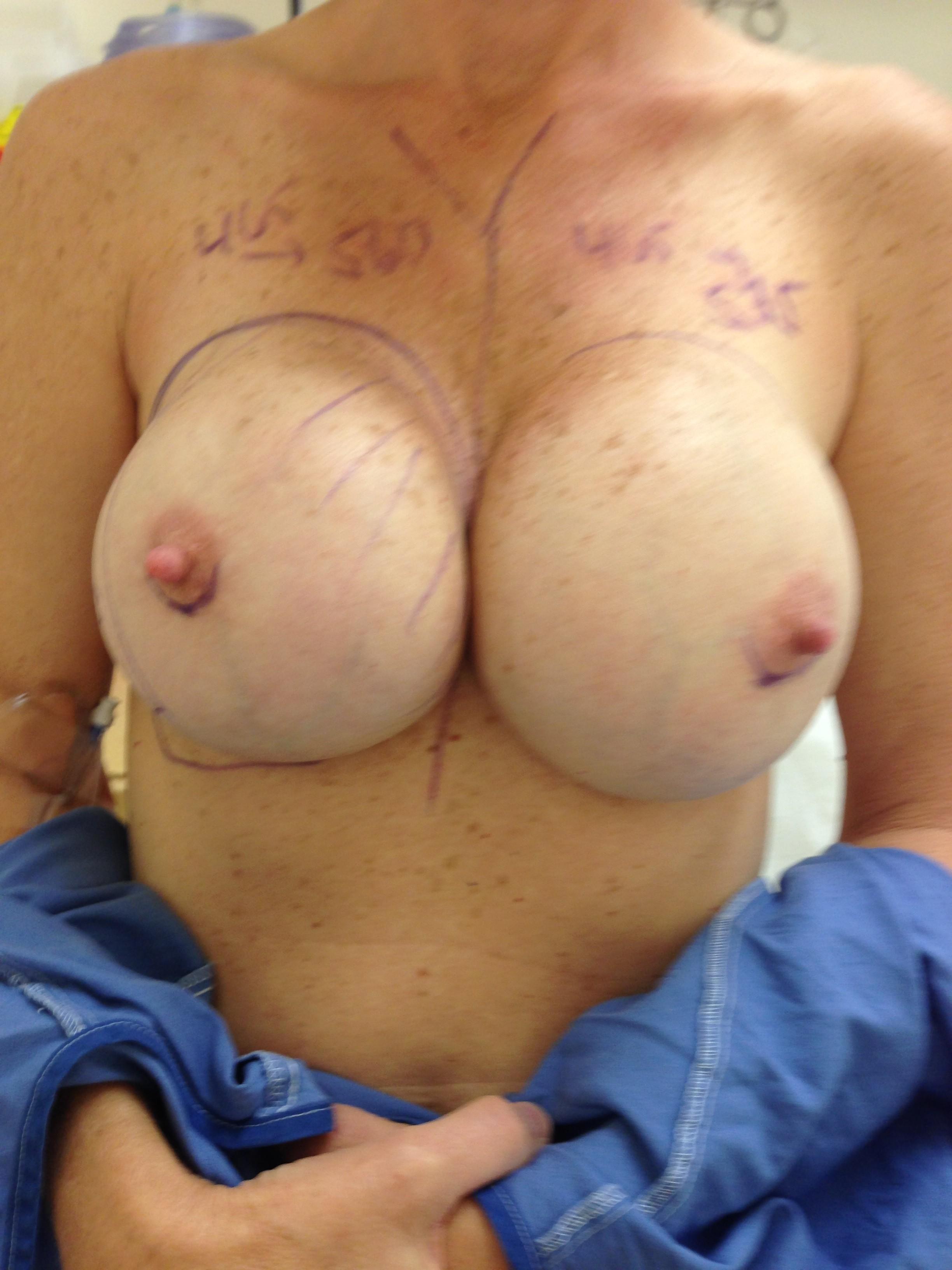 Polypropylene breast implant