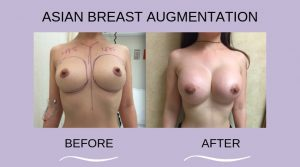 Before and After Breast Augmentation Procedure