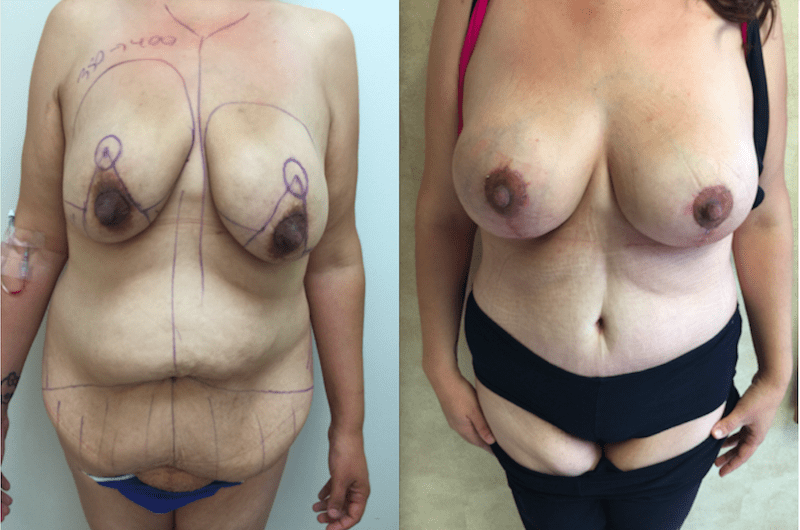 Massive Weight Loss, Body Contouring