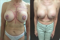 Before and After Dow Corning Ruptured Silicone Breast Implant Revision