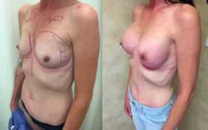 Before and After, Breast Augmentation On Slim Build