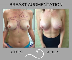 Before and After Photo of Woman Having Breast Augmentation