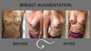 Moderate Plus Saline Breast Implants