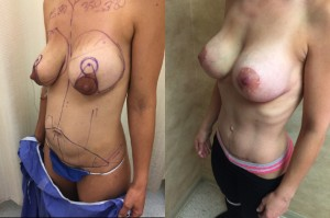 breast augmentation, lift and tummy tuck