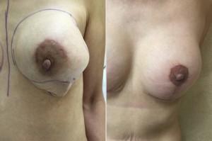 Breast Revision Surgery / Plastic Surgeon