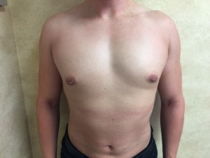 4 Month Post Op