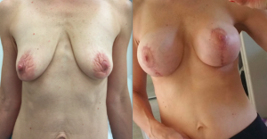 mommy makeover breast enhancement