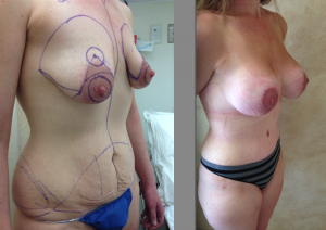 Areola Reduction Patient Dr. Linder