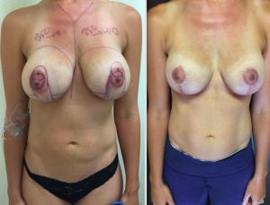 Woman Having Undergone Breast Reduction