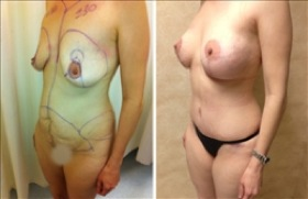 Woman Having Undergone Mommy Makeover Surgery