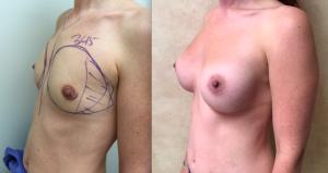 breast augmentation post pregnancy