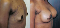 African American Breast Implants