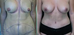 Combination Procedures & Body Sculpting