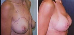 Pectus Carinatum Breast