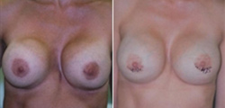 Pectus Excavatum Breast