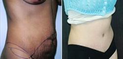 Post Bariatric Weight Loss Surgery