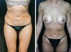 liposuction-patient-049