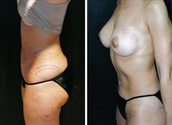 liposuction-patient-050