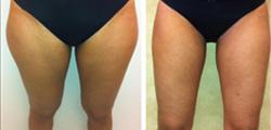 Saddlebag / Thigh