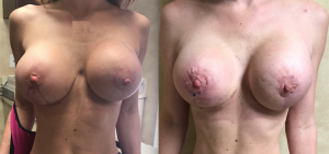Capsular Contracture With Sling, Breast Revision