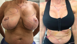 Explantation & Breast Reduction With Lift