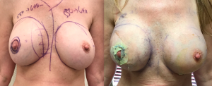 breast revision and lift