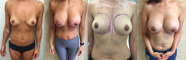 Breast Augmentation - Patients Before and After Results