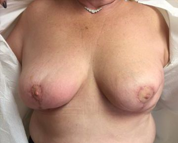 After Breast Reconstruction 02