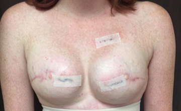 After Breast Reconstruction 01