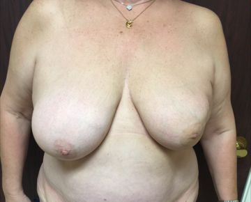 Before Breast Reconstruction 02