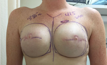 Before Breast Reconstruction 01
