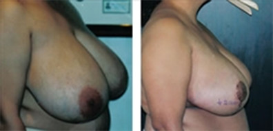 Breast Reduction before and after 1