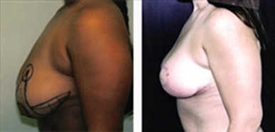 Breast Reduction before and after 4