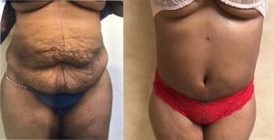 tummy and liposuction after weight loss