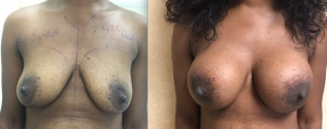 Breast Augmentation After Two Years