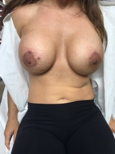 after photo breast revision