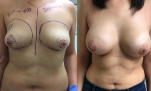 before and after tubular breast augmentation