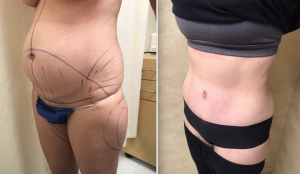 Body Contouring Along With Hernia Repair