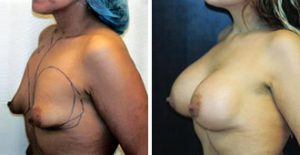 WHAT ARE TUBULAR BREASTS?