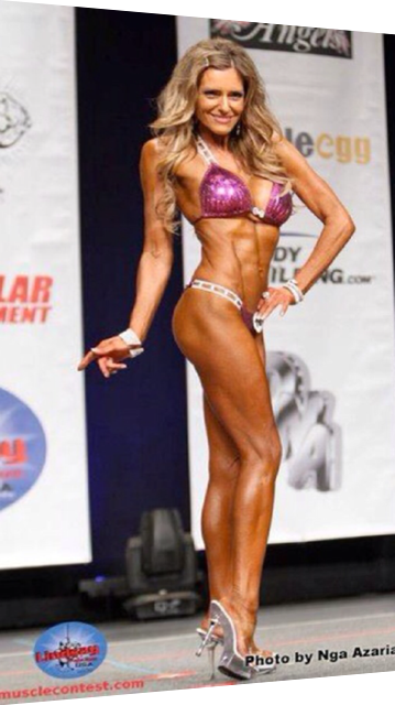 Breast Augmentation For Bodybuilders  Fitness Models In -2602
