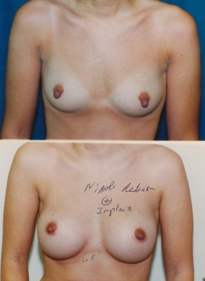 NippleEffects