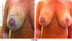 breast deformity