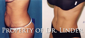 abdominoplasty01