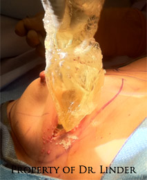 Silicone Breast Implants Leaking