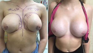 Mentor Saline Breast Revision