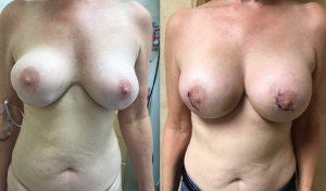Breast Revision, With SCX Implant Replacement