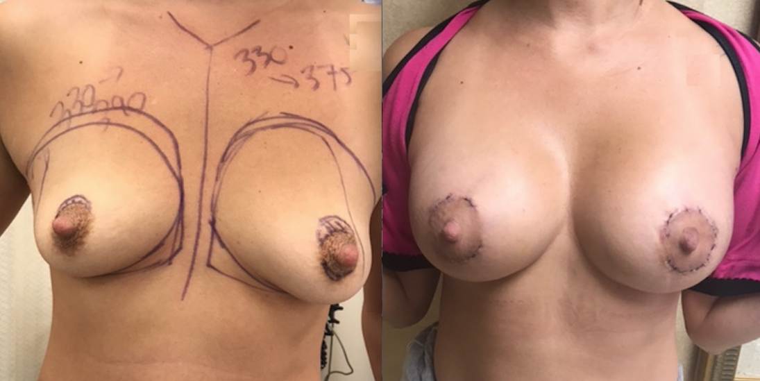 Periareolar Lift With Primary Breast Augmentation