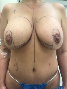 Two Ruptured Silicone Implants